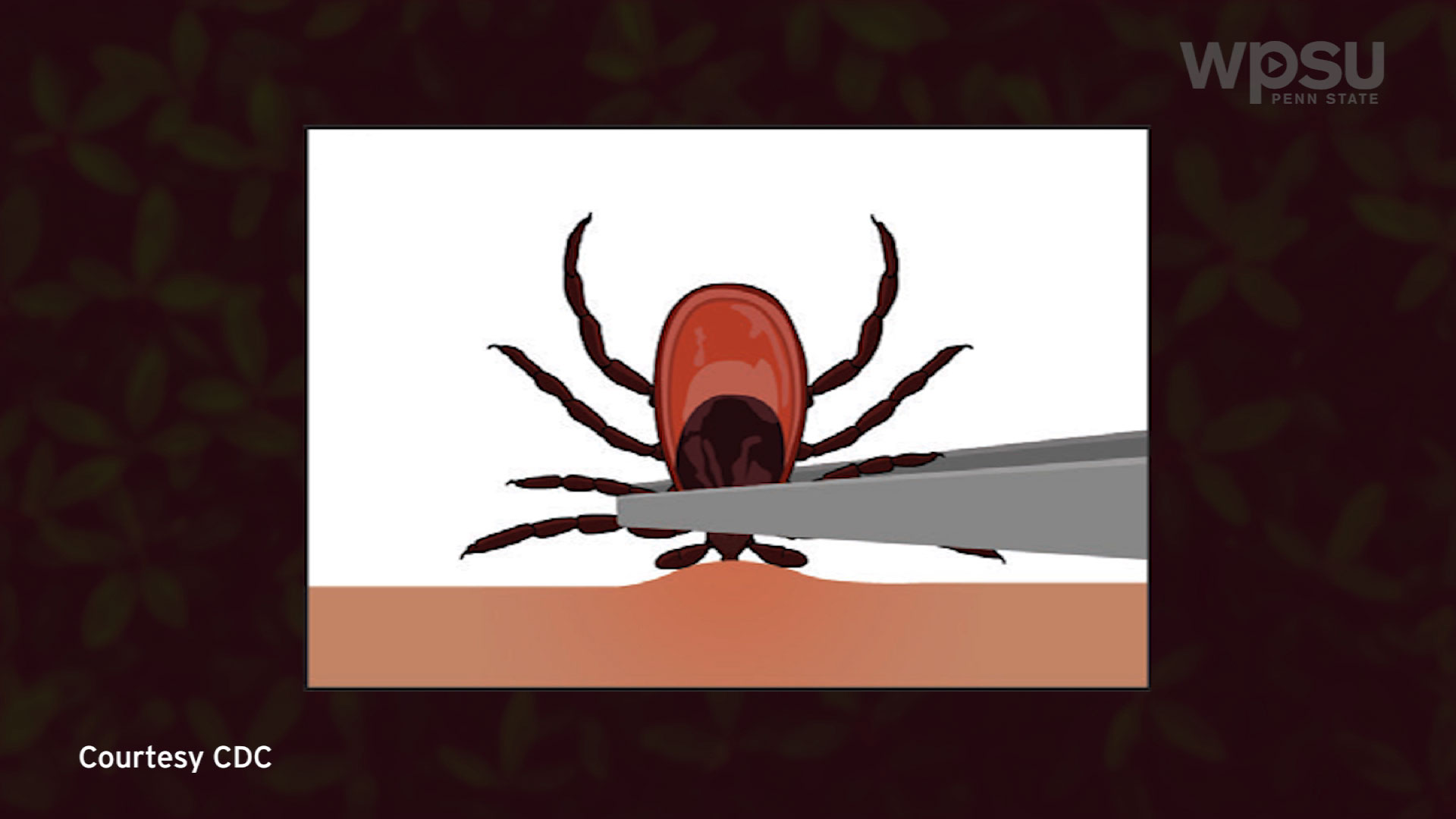 Illustration of tick removal